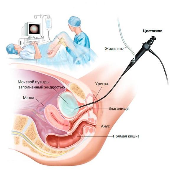 цистоскопія