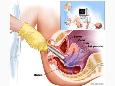 УЗД жіночих статевих органів.