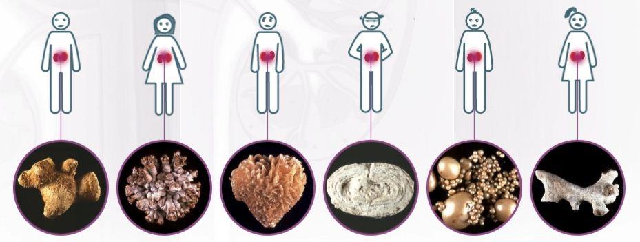 Візуальні види каменів в нирках.