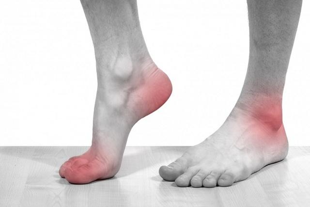 Причины боли в ступнях.