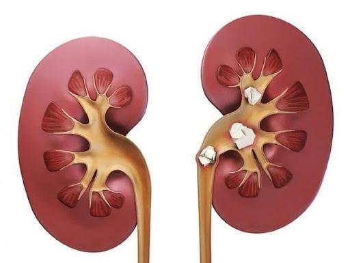Причини появи каменів у нирках