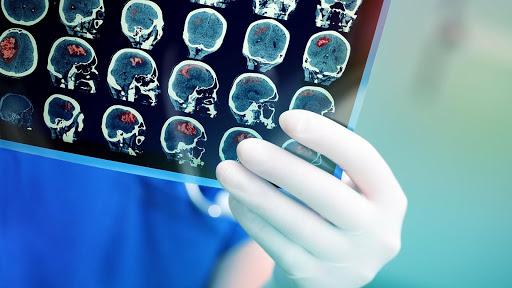 Сучасний комп'ютерний томограф = високоінформативні якісні знімки